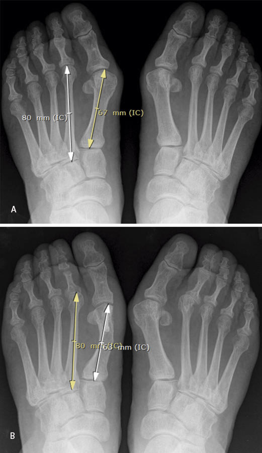 Metatarsalgia tras osteotomía del primer metatarsiano para ...