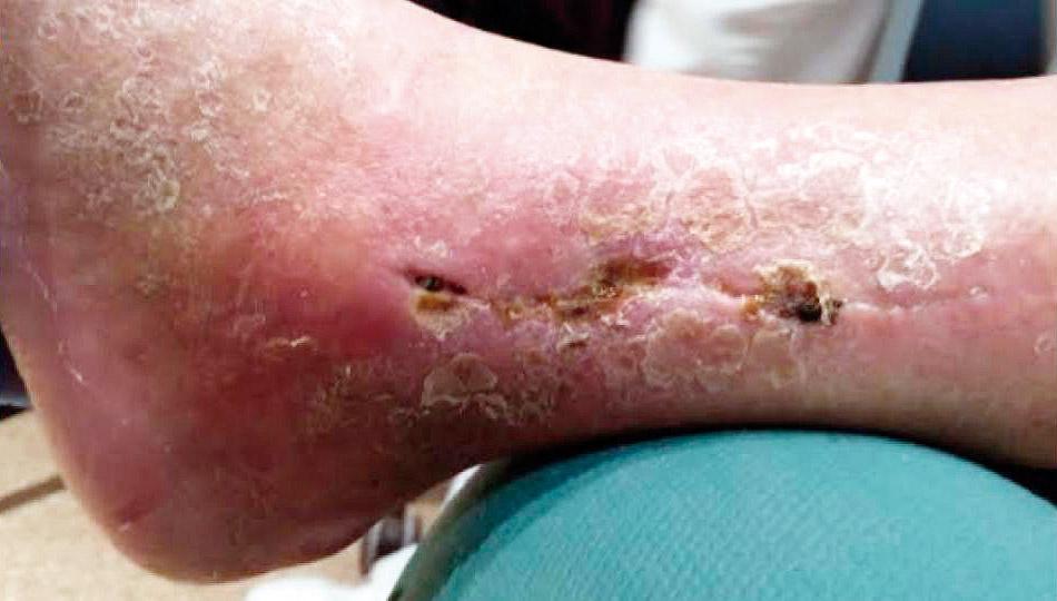 infeccion celulitis en el tobillo
