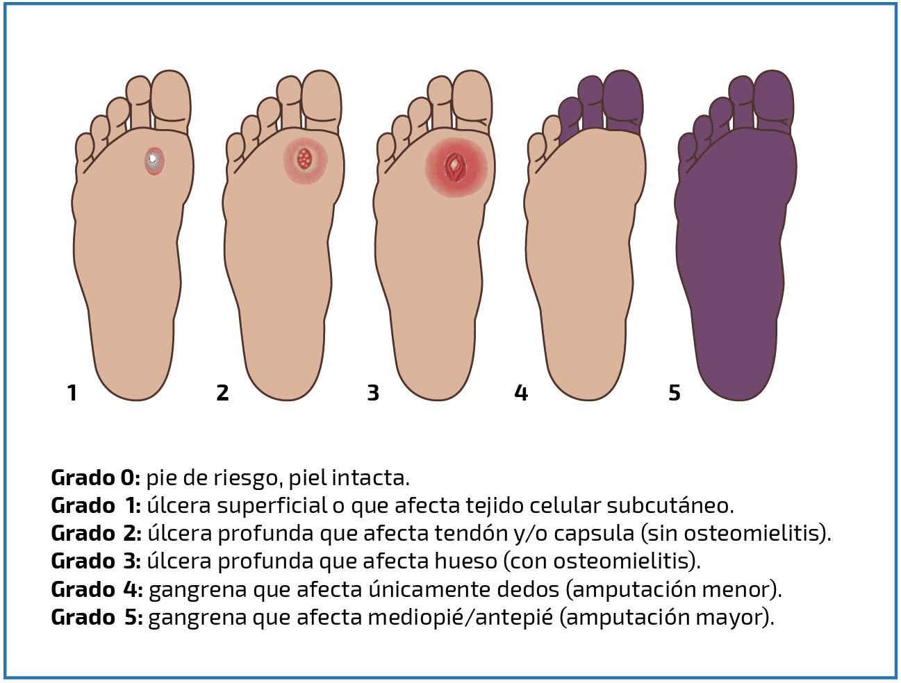 imágenes de diabetes de úlceras necróticas del pie