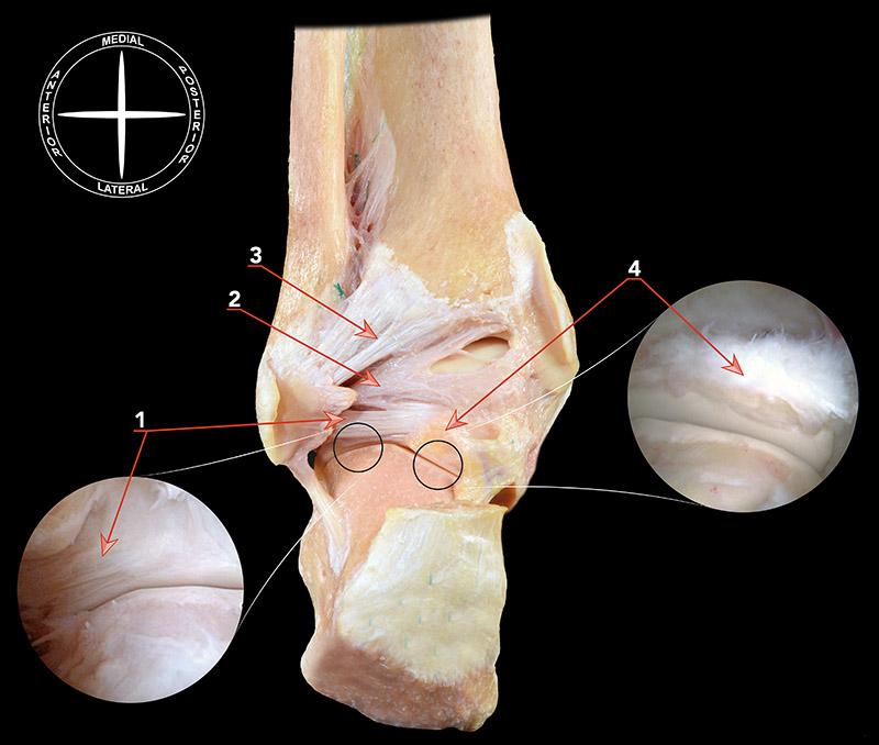 Anatomía endoscópica de la articulación subtalar posterior ...